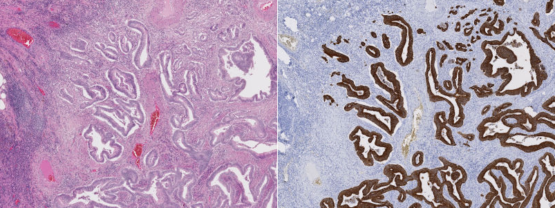 (left) H&E versus (right) IHC-stained images, from colorectal cancer tissue.